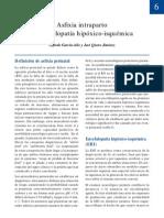 06 Asfixia Intraparto Encefalopatia Hipoxico Isquemica