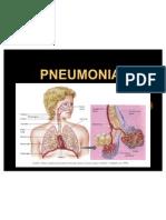 pneuumonia