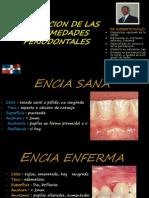 clasificación Enfermedades Periodontales