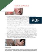 Dermatitis Atopik Pada Anak