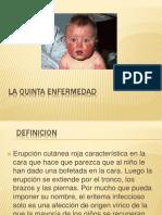 5º enfermedad_ Reynoso