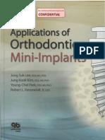 Applications of Orthodontic Mini-Implants