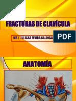 FRACTURAS DE CLAVÍCULA EXPOSICION