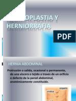 Hernia-hernioplastia-herniorrafia