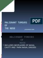 Malignant Tumors of Nose & PNAS