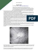 Neuritis Optica Enfermedad Ojos