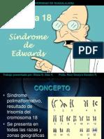 Sindrome de Edwards 1