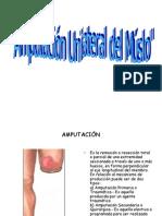Amputacion Unilateral