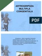 55790811-ARTROGRIPOZA-MULTIPLA-CONGENITALA