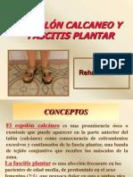 Espolon Calcaneo y Fascitis Plantar