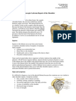 Combined Labrum Repair Protocol