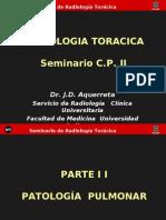 Radiologìa toràcica 2 ...seminario