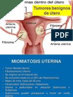 04.Miomatosis Uterina