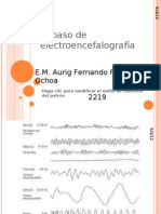 Electroencefalografía 2