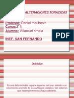 NIÑOS CON ALTERACIONES TORACICAS PPT