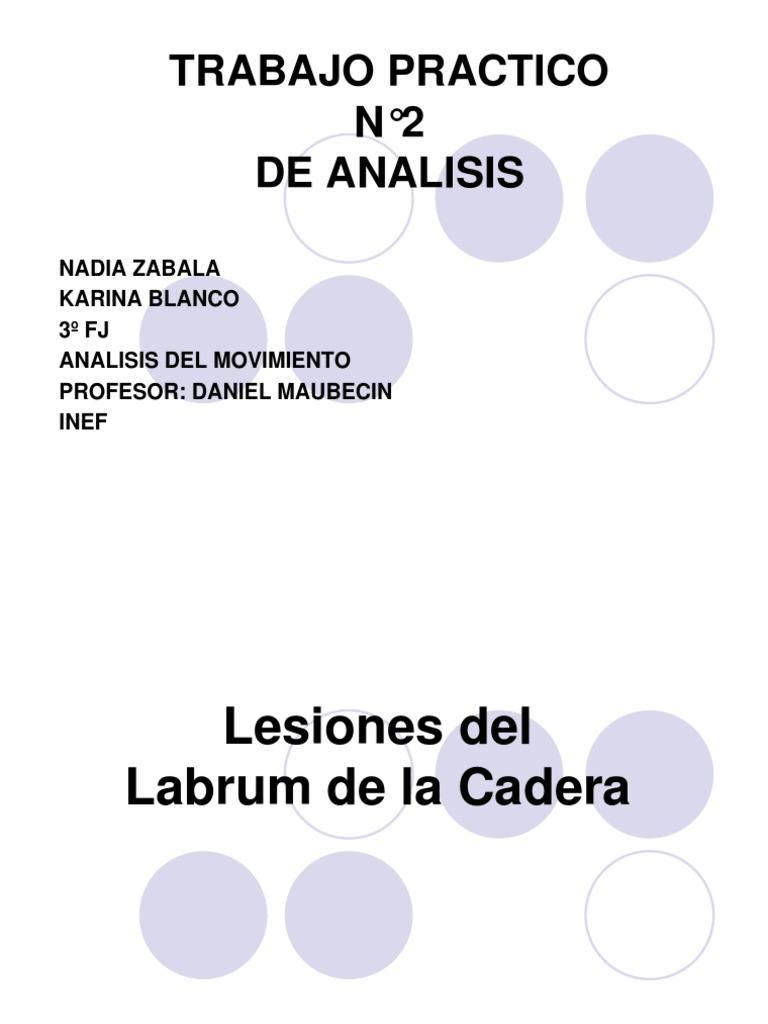 Lesiones Del Labrum de La Cadera