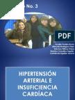 in e Insuficiencia Cardaca (1)