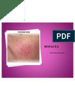 Rosacea PP2