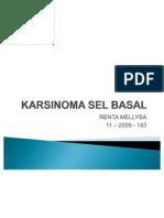 Karsinoma Sel Basal