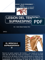 Lesion Supraespinoso - Ok