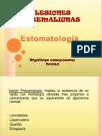 Liquen de La Mucosa Oral[1]