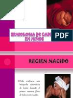 SEMIOLOGIA DE CADERA EN NIÑOS