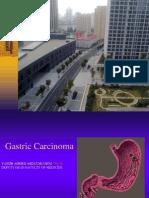 Gastric Carcinoma (No videos)د.ياسر عبدالمغني