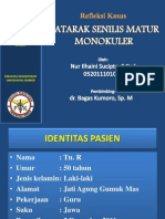 Katarak Senilis Matur Monokuler by Nuril Edit