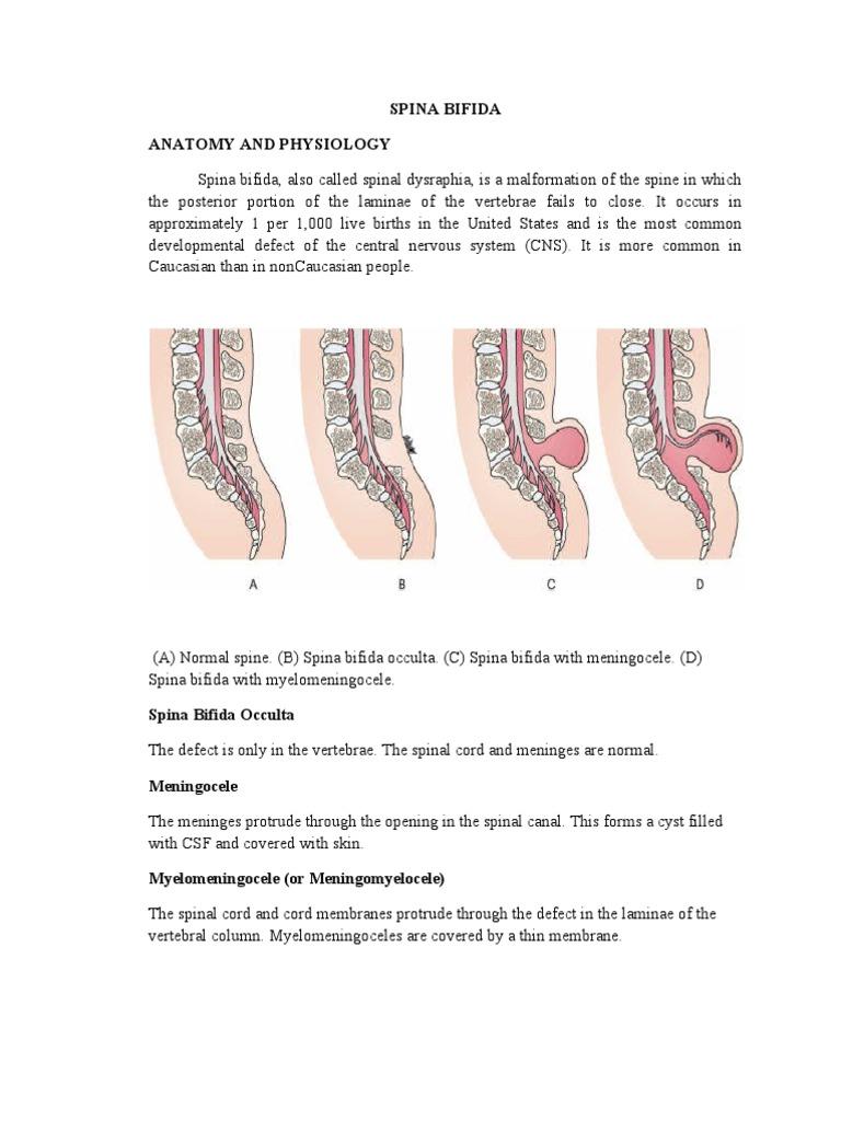 Case Spina Bifida | Vertebral Column | Vertebra