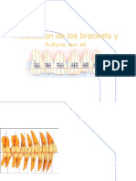 instalaciondelosbracketsytubosenortodoncial-101211111217-phpapp01(1)