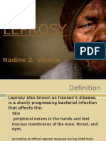 Leprosy by