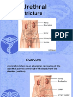 Slide World Urethral Stricture