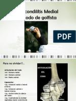 Epicondilítis medial