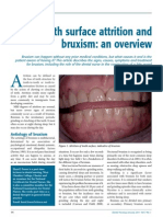 A-Attrition and Bruxism