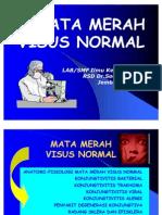 Kuliah II. S-I Mata Merah Visus Normal-BK
