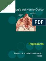 Patología Del Nervio Optico