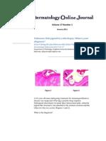 Pink Pigtail in a Skin Biopsy