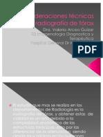 consideraciones técnicas en la radiografía de tórax
