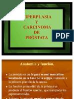 Cancer de Prostata.