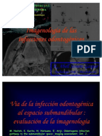 INFECCIONES ODONTOGENICAS 1