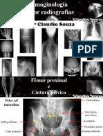 aula 4- Imaginologia por radiografias- Fêmur e cintura pelvica. Profº Claudio Souza