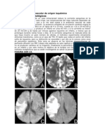 Accidente cerebrovascular isquémico
