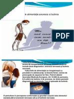 Bulimia Si Anorexia