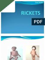 Ricket Disease
