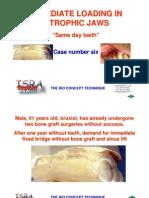 06-Diskimplant