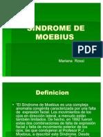 sindrome-moebius