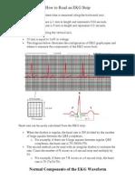 How to Read an EKG Strip