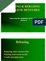 CD Relining & Rebasing Complete Dentures