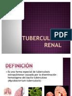 Tuberculosis Renal 1