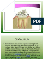 Dental Inlay Preparation